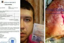 """Әтнә егете Рияз Мөхәммәтҗанов: """"Өч елда күпме операция кичердем, нәтиҗә юк, өмет кенә калды"""" [фото]"""